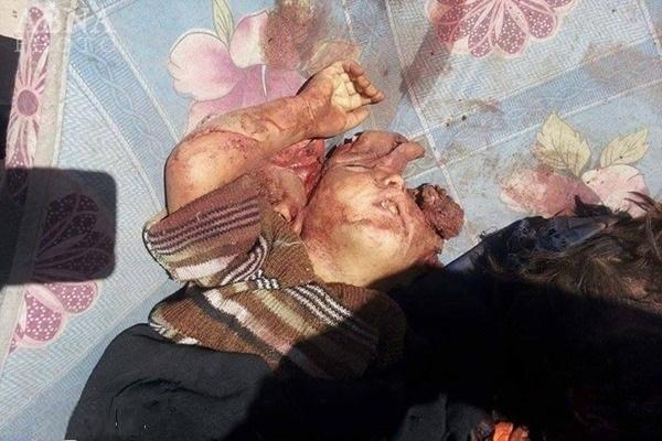 Killed By Saudi-American7