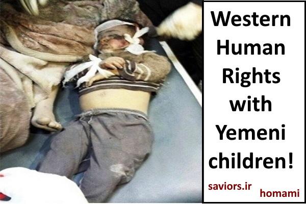 Children killed in Yemen, Human rights watch or oil power?