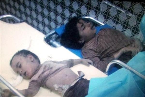 Killed By Saudi-American