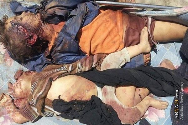 Sad story Yemen and Western Human Rights